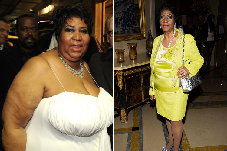 Amazing Celebrity Weight Loss Transformations Page 22 Of 70