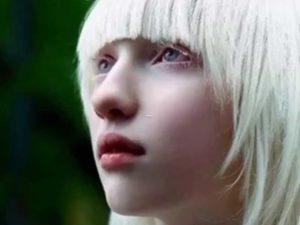 The science behind Albinism